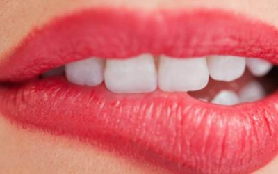 7 Signs You May Be In Need Of Dentures
