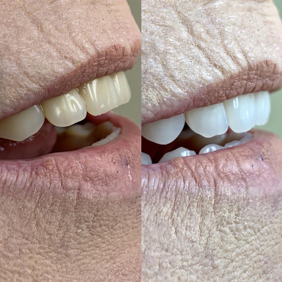 Standard dentures side view