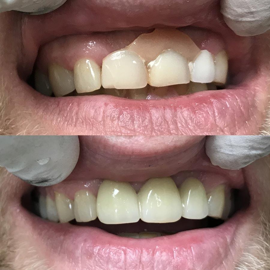 Cast partial upper denture