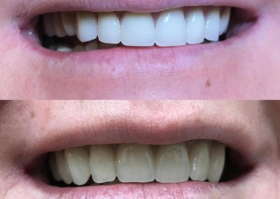 New upper denture, more natural looking colour