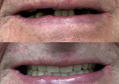 Complete upper denture and immediate lower denture