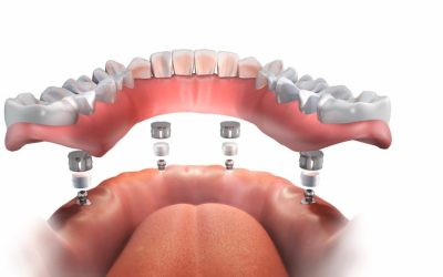 Implant Supported Dentures Cost