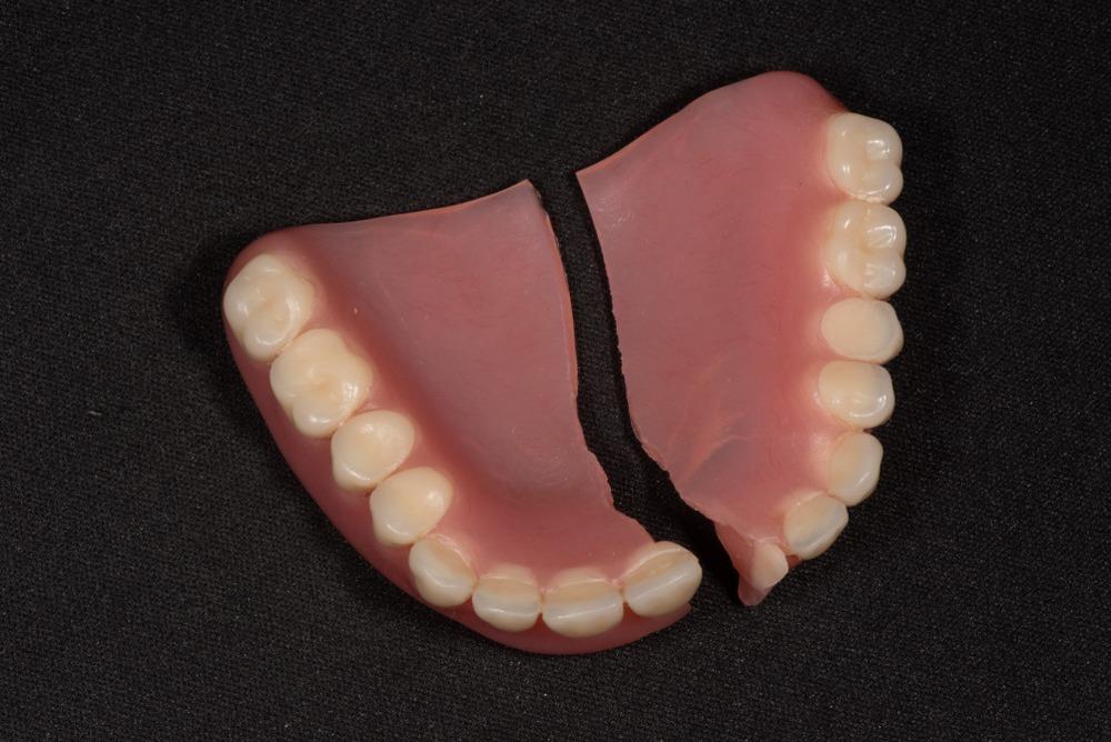 broken set of dentures repair needed